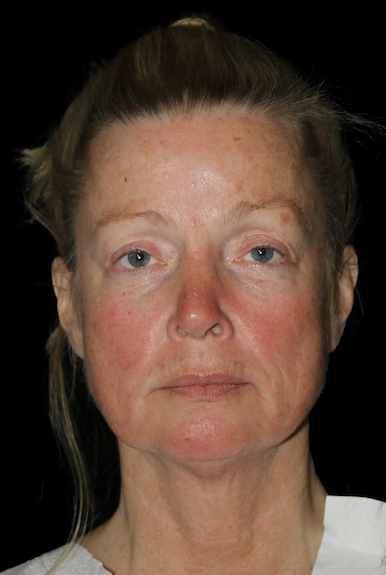 Facial Fat Grafting Before & After Patient #11883