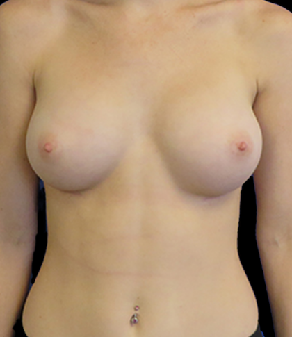 Breast Augmentation Before & After Patient #11555