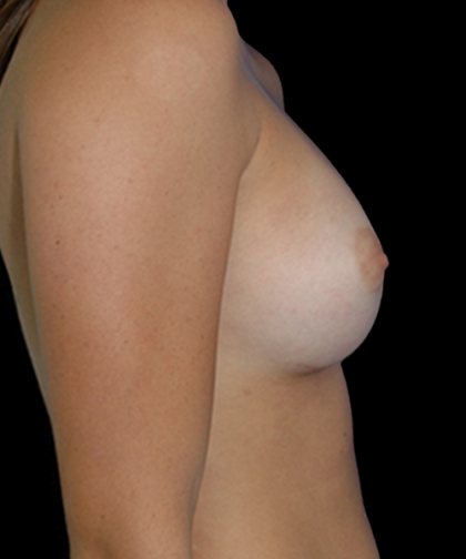 Breast Augmentation Before & After Patient #11563