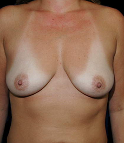 Breast Augmentation Before & After Patient #11558