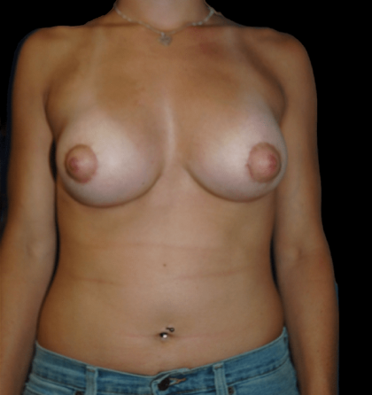 Breast Augmentation Before & After Patient #11972