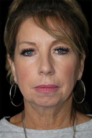 Facelift Before & After Patient #11566
