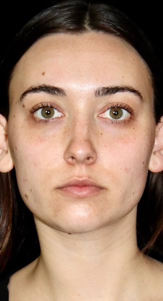 Facial Fat Grafting Before & After Patient #11898