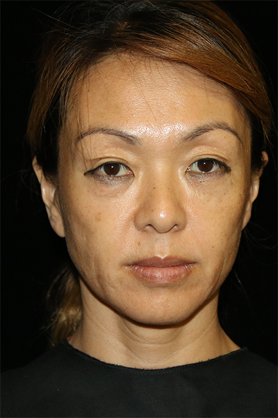 Facial Fat Grafting Before & After Patient #11603