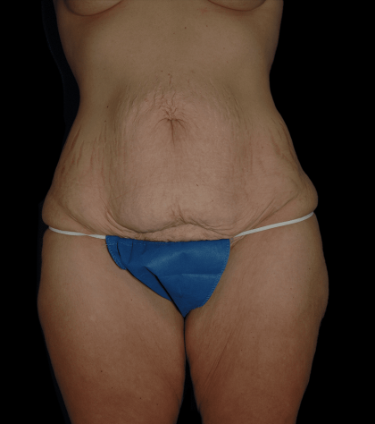 Tummy Tuck Before & After Patient #12319