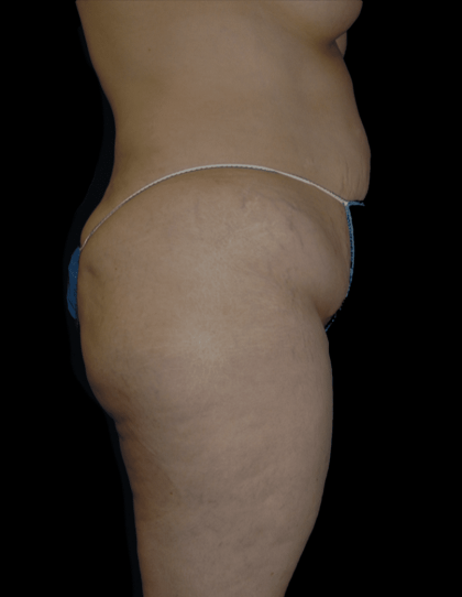 Tummy Tuck Before & After Patient #12326