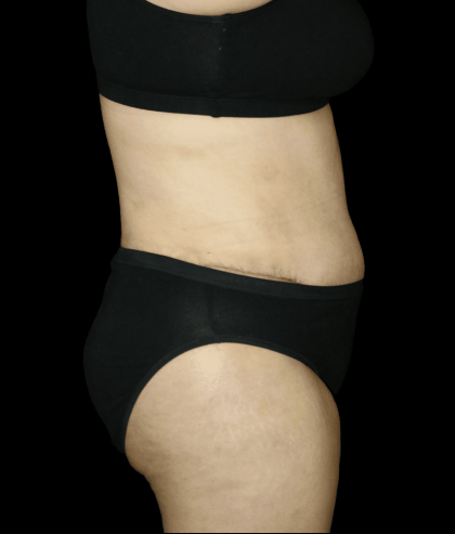 Tummy Tuck Before & After Patient #12333