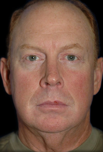 Facelift Before & After Patient #12099
